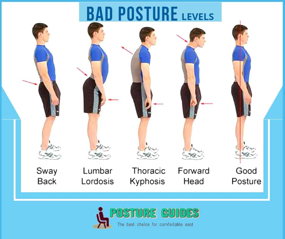 Bad posture Level- How is a posture corrector useful